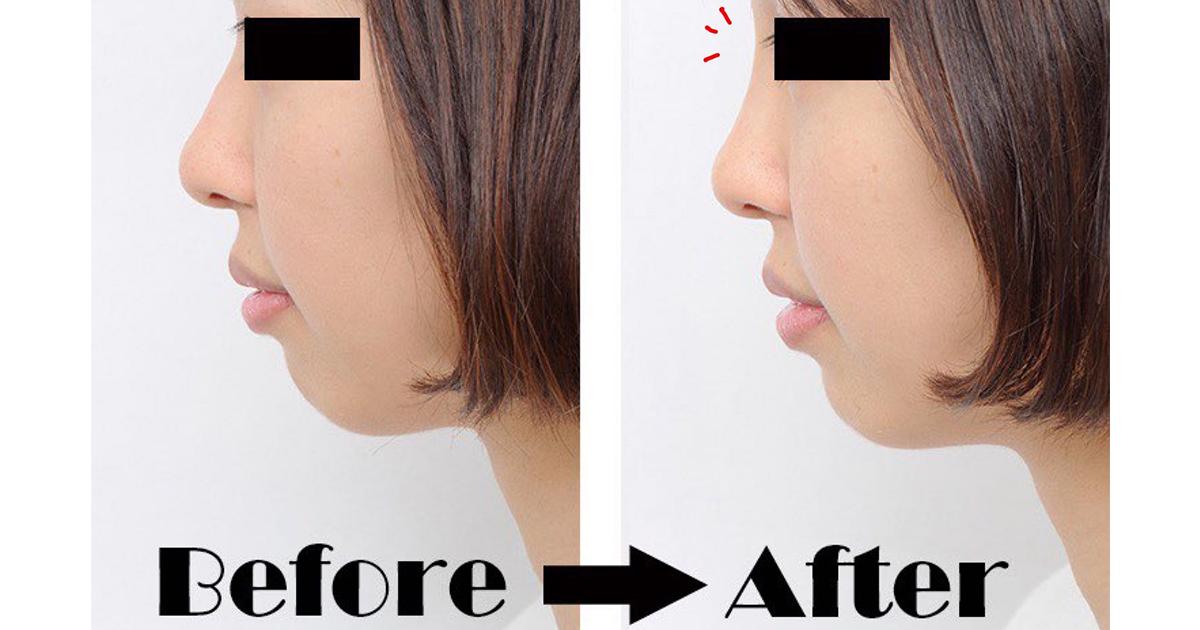 鼻 整形 バレ ない 美容外科で鼻の手術をしたいけれど周囲にバレないか心配という方へ
